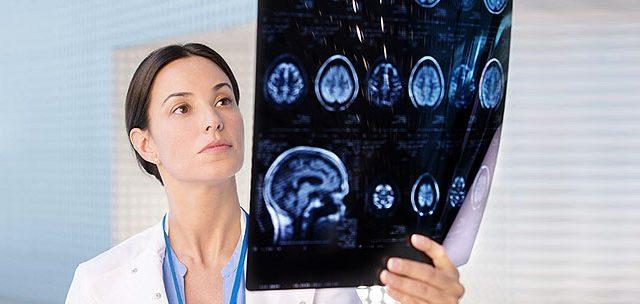 علل مراجعه به متخصص مغز و اعصاب