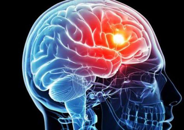 پیشگیری از سکته مغزی هموراژیک
