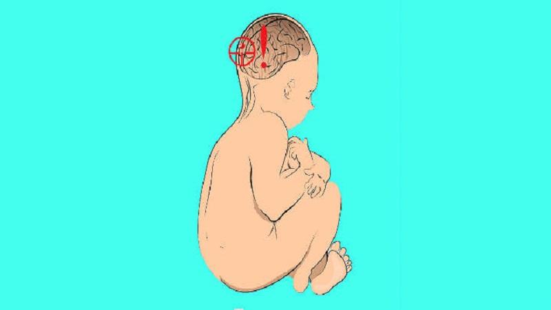 چه عواملی در بروز فلج مغزی نقش دارند؟
