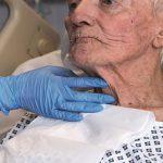 اختلال بلع در بیماران ای ال اس