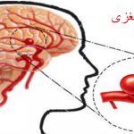 انوریسم مغزی