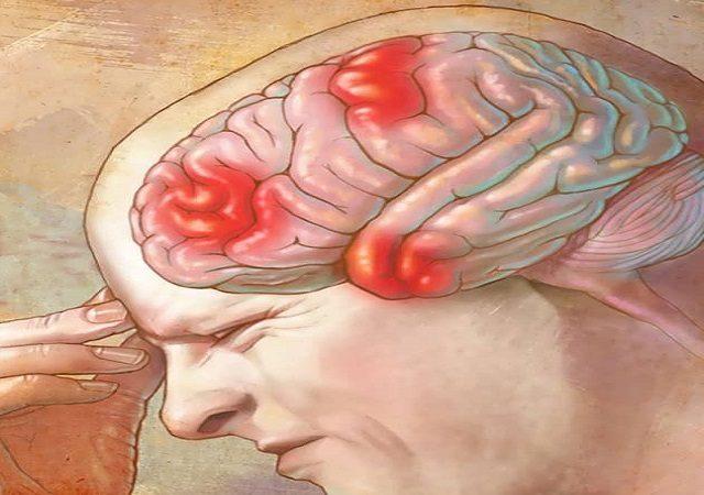 فشار مغزی