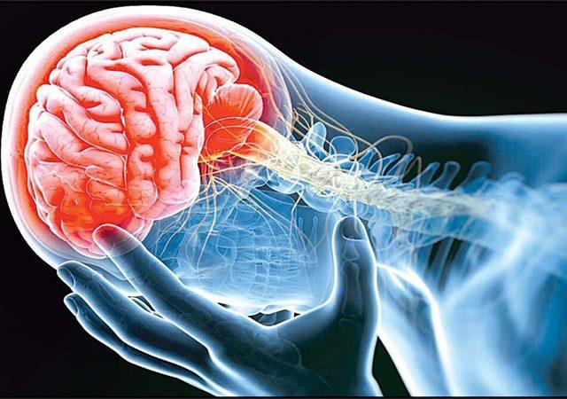 تاثیر سکته مغزی بر سیستم عصبی