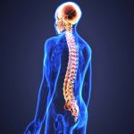 علائم ضایعه نخاعی و عوارض آن | کلینیک مغز و اعصاب اصفهان