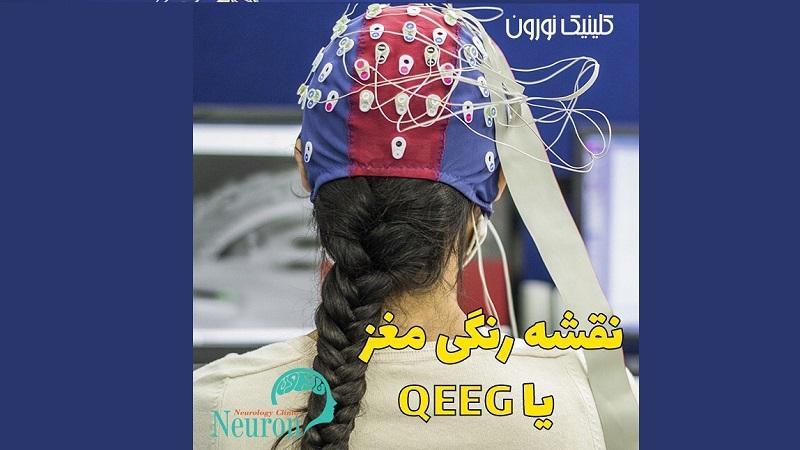 نقشه رنگی مغز یا QEEG | کلینیک مغز و اعصاب اصفهان